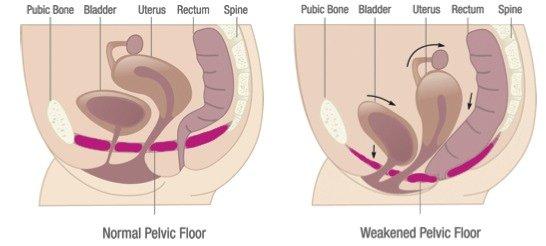 urinary incontinence due to weak pelvic floor