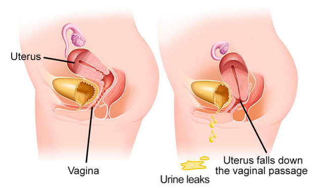 urinary incontinence pelvic organ prolapse