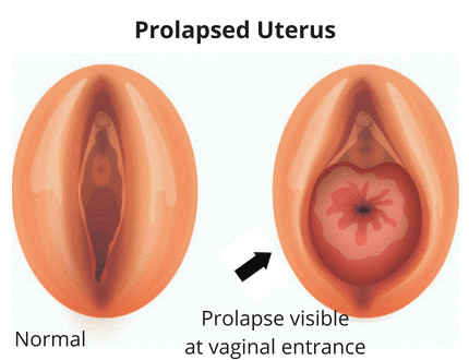 pelvic organ prolapse view